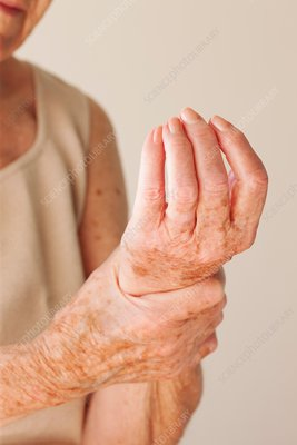 Elderly woman with wrist pain