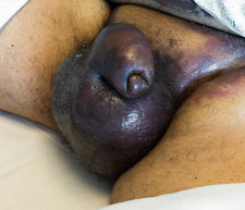 Swollen genitals due to haematoma