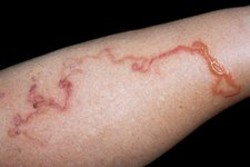 Cutaneous larva migrans infection