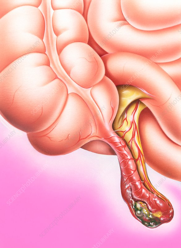 Gangrenous appendicitis, illustration