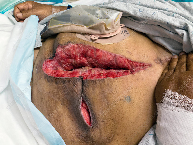 Abdominal colostomy surgery