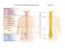 Spinal nerve damage, illustration
