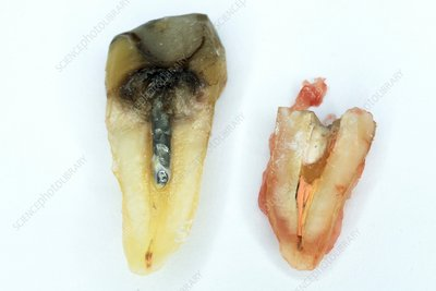 Extracted premolar tooth and root