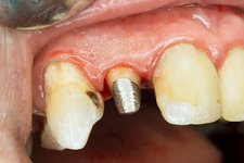 Upper incisor with post for dental crown