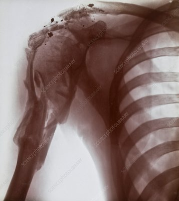 Shoulder injury X-ray, early 20th century