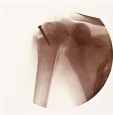 Shoulder screw X-ray, early 20th century
