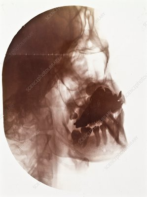 Dental implant X-ray, early 20th century
