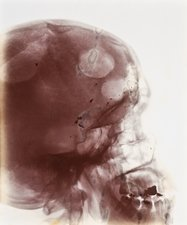 Skull injury X-ray, early 20th century