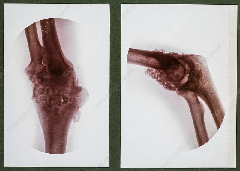 Joint deformity X-ray, early 20th century