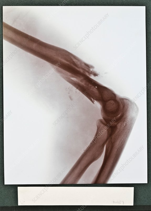 Broken arm X-ray, early 20th century