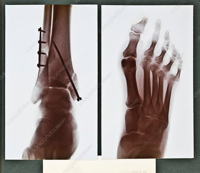 Ankle fixation X-ray, early 20th century