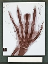 Finger injury X-ray, early 20th century