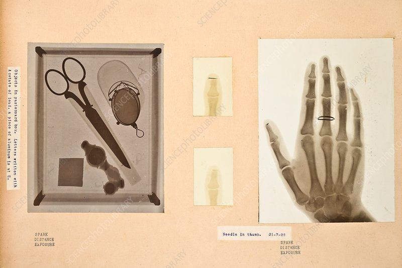Historical X-rays, early 20th century