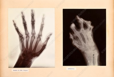 Hand disorder X-rays, early 20th century