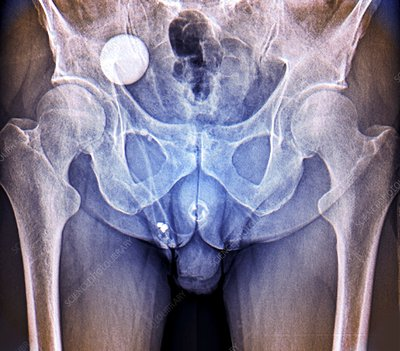 Incontinence implant, X-ray