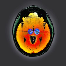 Parkinson's brain pacemaker, CT scan
