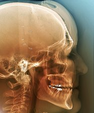 Fixed skull fractures after road accident