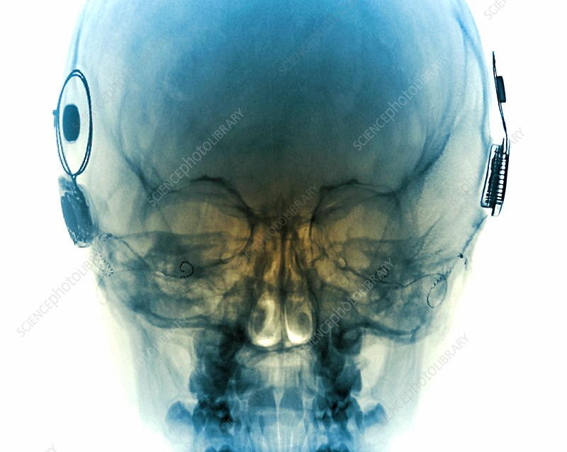 Cochlear implants, X-ray