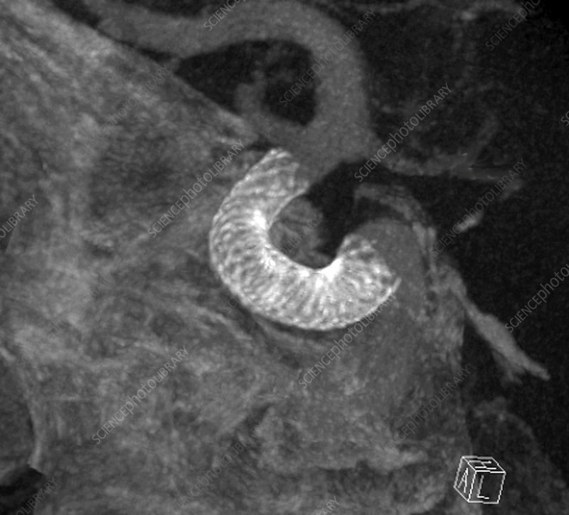 Stent in carotid aneurysm, 3D CT scan