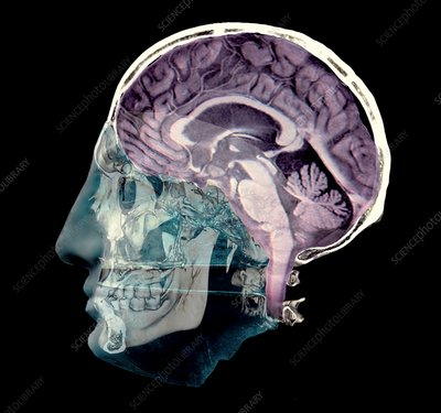 Thought, conceptual 3D MRI and CT image