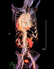 Arterial dissection, 3D CT scan