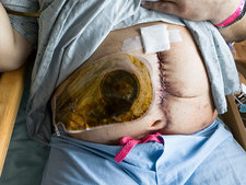 Colostomy following bowel surgery