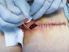 Draining pus from infected surgical wound