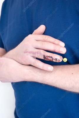 Pinned finger fracture