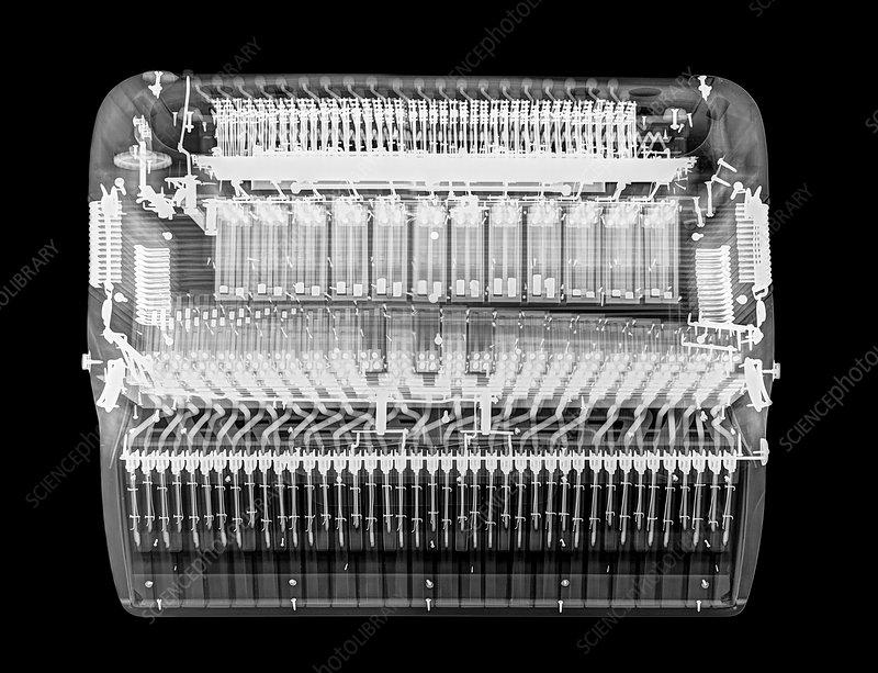 X-ray of an Accordion