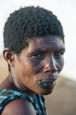 Refugee with facial tumour