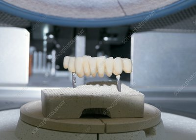 Dental bridge construction