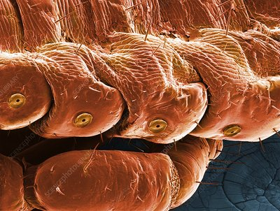 Head louse spiracles, SEM