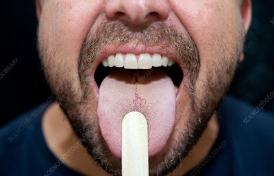 Tongue and throat examination