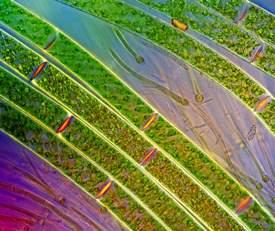 Spirogyra algae and cyanobacteria