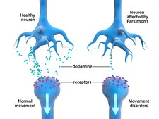 Parkinson's disease, neurons and dopamine