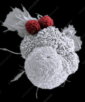 T cells attacking cancer cell, SEM