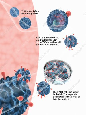CAR T cell cancer immunotherapy