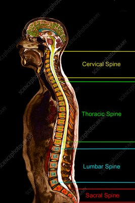 Regions of the spine, sagittal MRI
