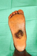Keloid on the sole of the foot