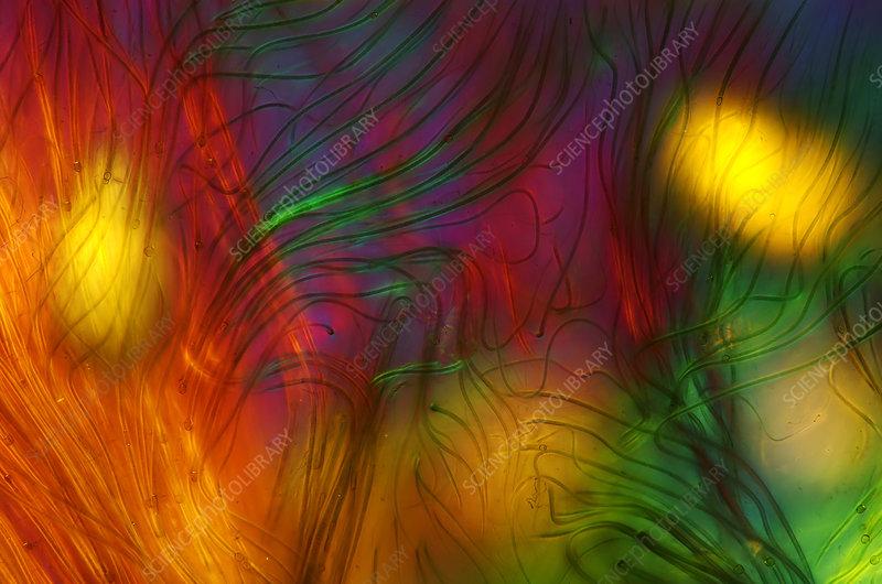 Rivularia cyanobacteria, light micrograph