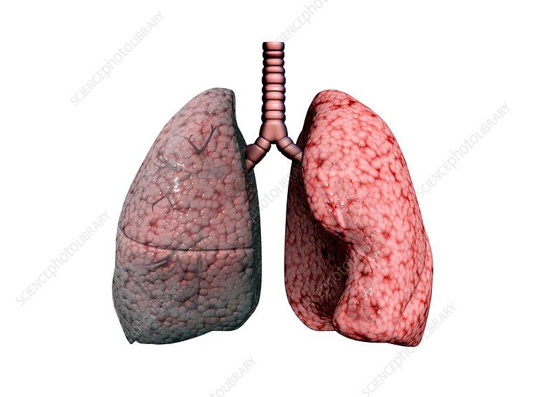 Chronic obstructive pulmonary disease, illustration