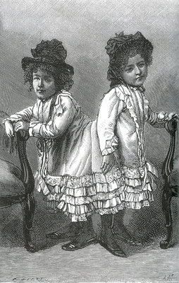 Rosa and Josefa Blazek, Conjoined Twins