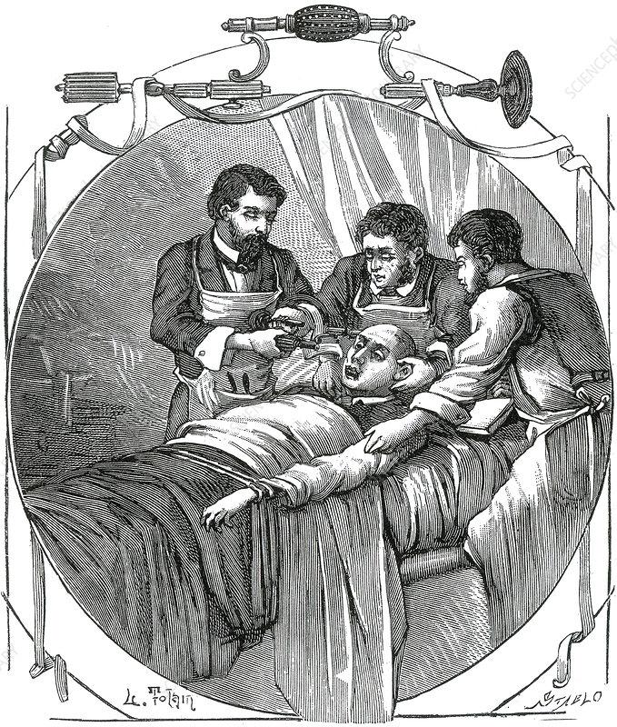 Trepanning, 19th Century
