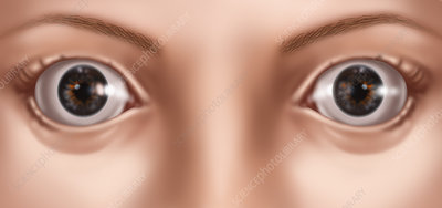 Bulging Eyes, Illustration
