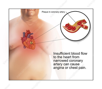 Coronary Artery Plaque Causing Angina