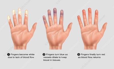 Raynaud's Disease Information Pamphlet