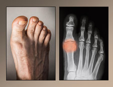 Osteoarthritis Of Big Toe