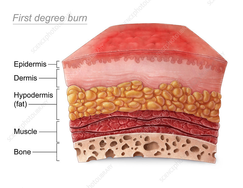 First Degree Burn - Stock Image - C030/5962 - Science ...