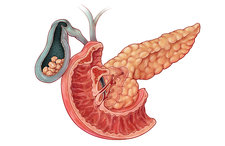 Gallstones, Illustration