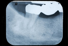Periapical X-Ray Showing an Abscess